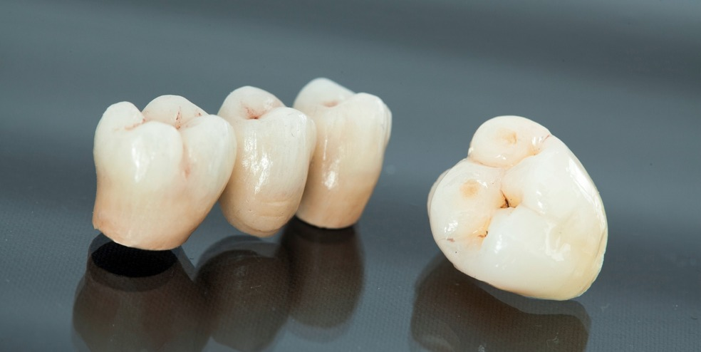 Tooth crown - Reepham Dental practice